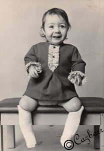 Me as a toddler with lower leg splints to straighten my club feet caused by Arthrogryposis